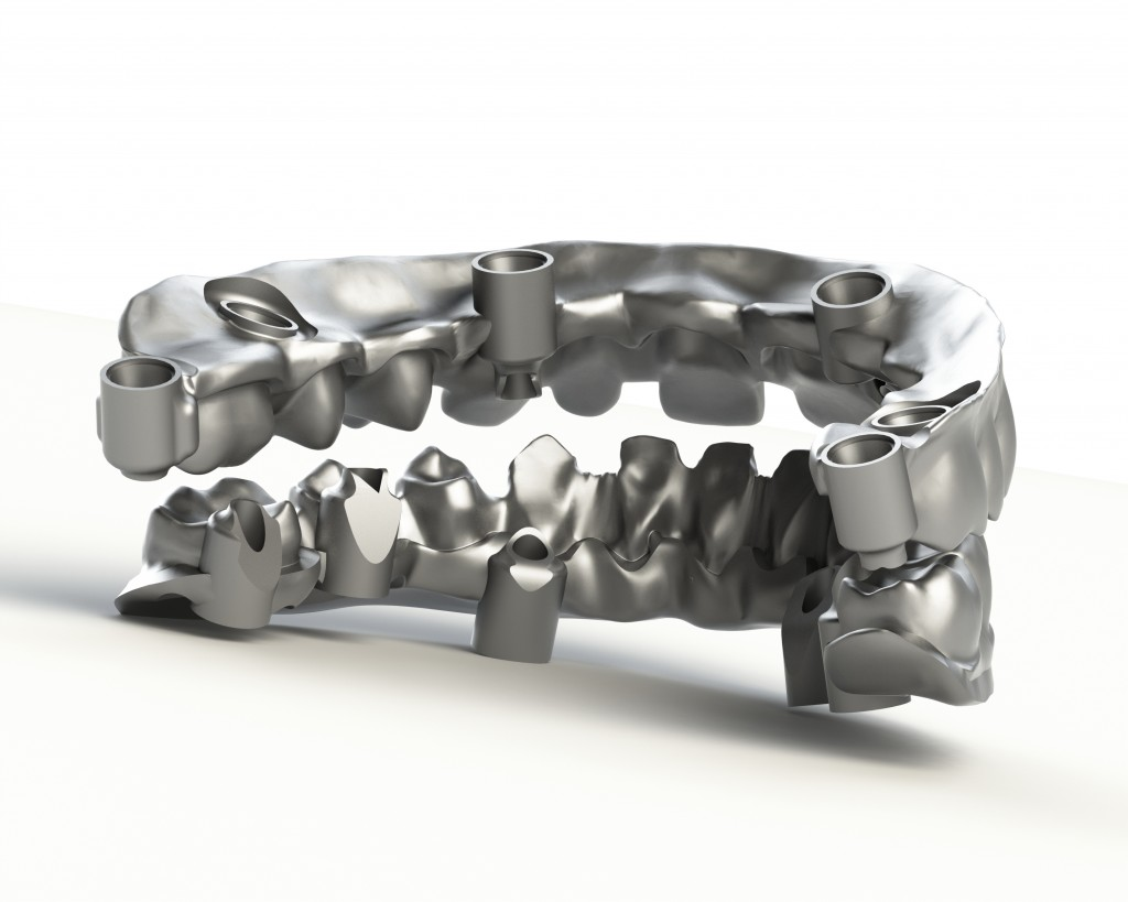 implant-bridge-da-ceramizzare