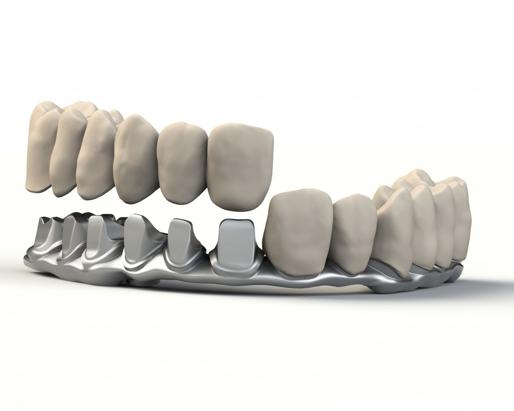 implant-bridge-premium-v2